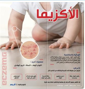 الأكزيما.. الأسباب والأعراض